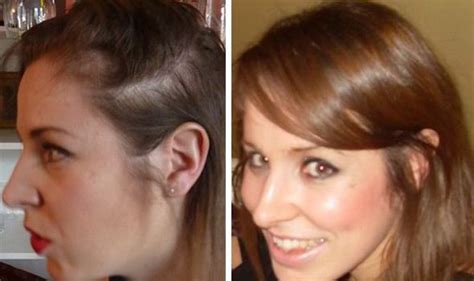 womans hair thinning on sides i learned the bald truth about my hair loss from