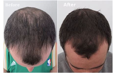 mens haircuts gold coast hair transplant before and after medici capelli brisbane