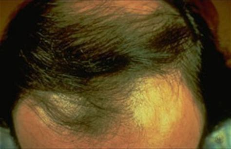 Types Of Hair Diseases by Hair Loss American Academy Of Dermatology