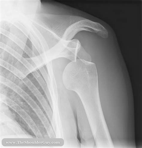 dislocated shoulder how to manage an acute anterior shoulder dislocation tips for safe fast