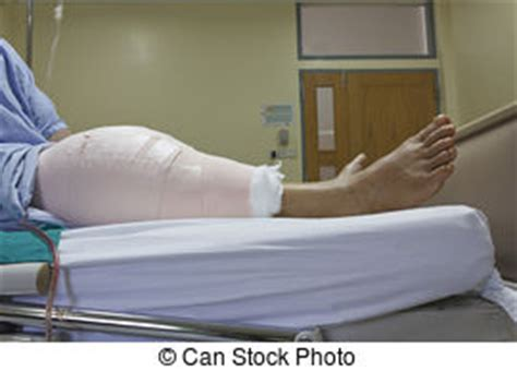 c section scar leaking incision stock photo images 8 592 incision royalty free