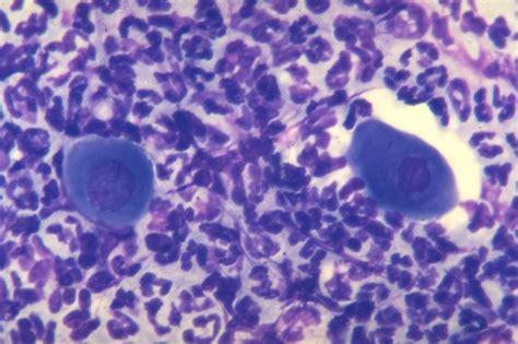 cytology report sle skin pemphigus foliaceus in cats vetlexicon felis from