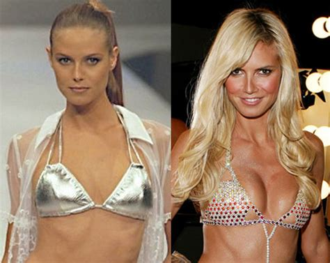 breast implants surgery all about celebrity breast photoshop celebrities before and after sex porn images