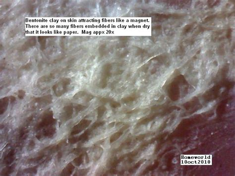 Stool Sle Collection by Parasite Skin Fibers Chronic Scalp Neck Problem At Parasites Skin Support