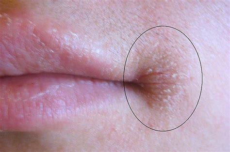 old c section scar red and sore here s how to deal with this insanely annoying mouth issue