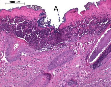 histological section of a skin abrasion on the fore lim