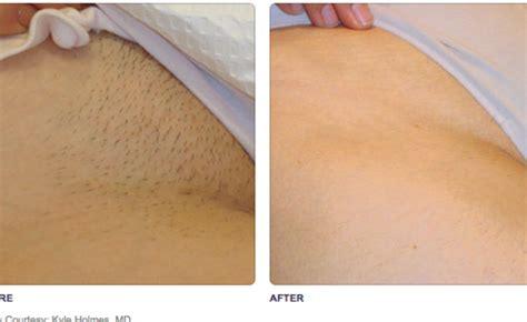 male genital hair removal before after photos laser hair removal ultiskin aesthetics by ultimed