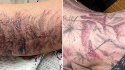 tattoo rash pictures red bubbly rashes will make your dumb tattoos even dumber