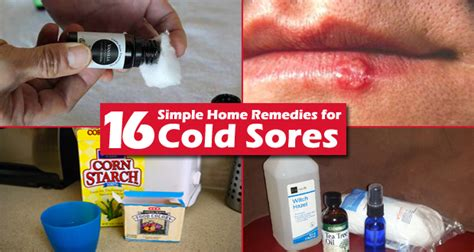 Hair Dryer For Cold Sores rapid home remedies alternativenatural home health
