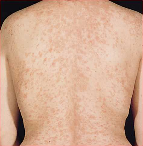 christmas tree rash causes treatment home remedies