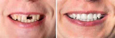 hornhautverkrümmung ab wann korrigieren kronen und br 252 cken zahnarzt in sopron