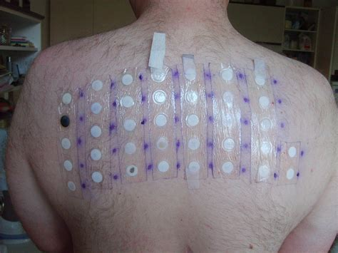 patch test wikipedia