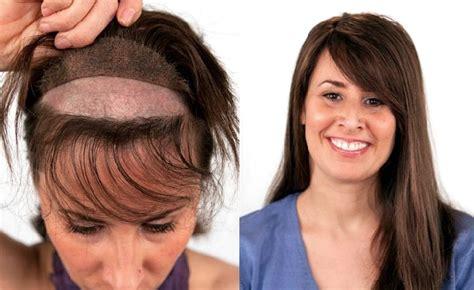 best haircuts fir transplanted hair greffe de cheveux non chirurgicale en exclusivit 233 224 la