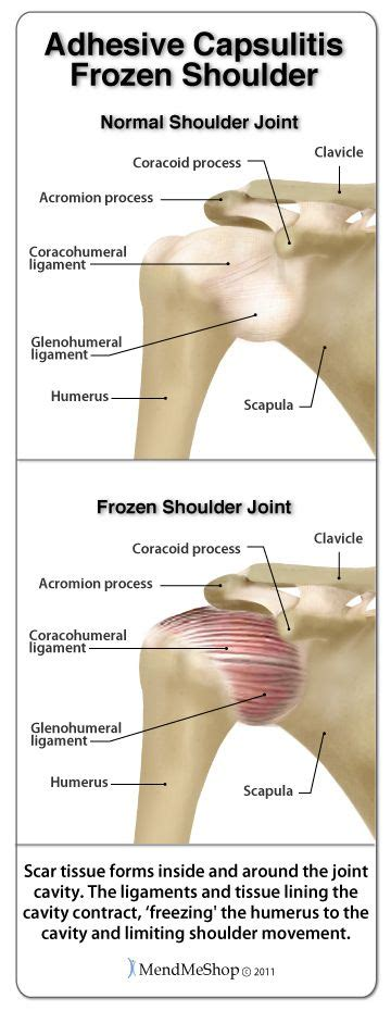 Detox Frozen Shoulder by Frozen Shoulder Takes A Lot Of Physical Therapy