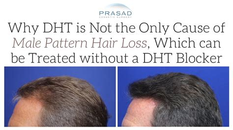dht and hair hair loss treatment prp is not a dht blocker but dht is