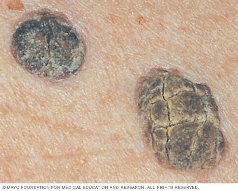 Mole Shedding by Seborrheic Keratosis Symptoms And Causes Mayo Clinic
