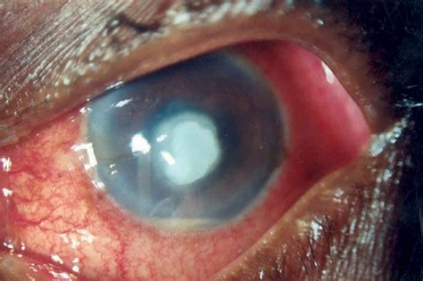 eye ulcer corneal ulcer causes symptoms treatment pictures home remedies diseases pictures