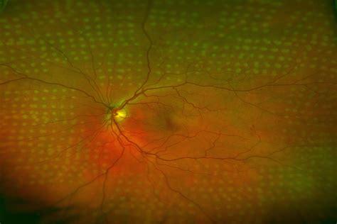 Laser Light Sepeda By Mr Pan diabetic eye disease diabetic retinopathy treatment