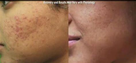 allergic reaction to banana boat tanning oil laser for wrinkles on forehead dermatologist treatment