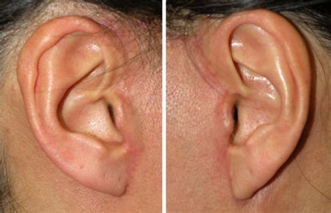 rhytidectomy incision facelift incisions and scars gallery midlothian va