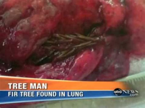 abc news tree grows  mans lung youtube