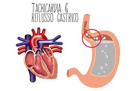 alimentazione reflusso gastrico tachicardia e reflusso gastrico apparato digerente