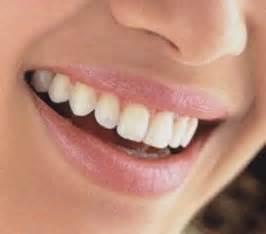 Charlando en positivo sonrisas falsas da 241 an la salud