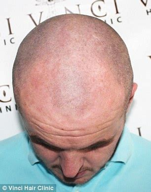 hair tattoos for balding men bald turn to hair tattoos to creates the illusion of