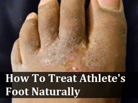 kill athletes foot in shoes how to kill athlete s foot in shoes 28 images 6 best