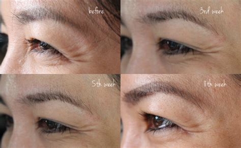 tria beauty laser before and after pictures my experience with tria age defying eye wrinkle correcting