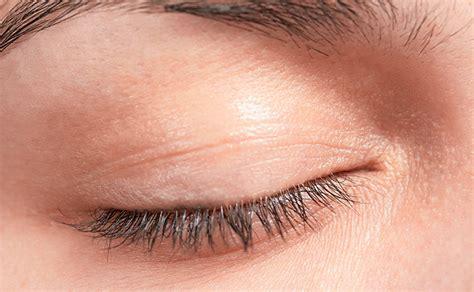 eyelid tumor eyelid cancer one of the many types of skin cancer lifescript