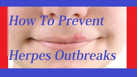 Out For Herpes by How To Prevent Herpes Outbreak How To Treat