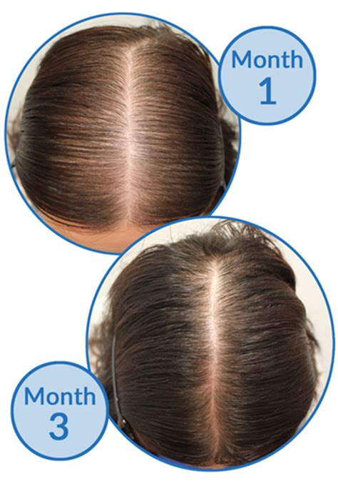 hair loss pattern pcos sleep tips may prevent thinning from stress related hair loss