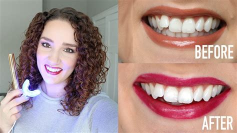 snow teeth whitening review  teeth whitening