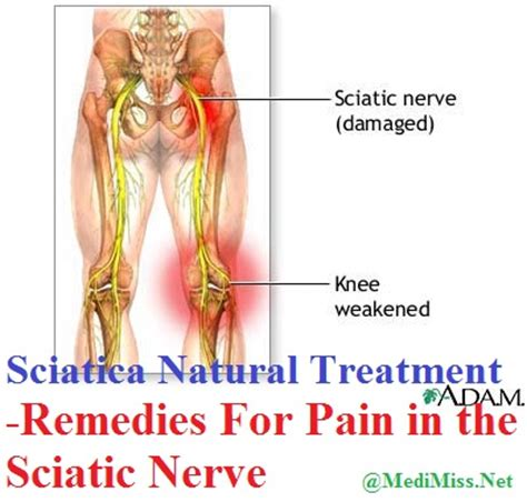 how to treat sciatica pain in leg sciatica natural treatment remedies for pain in the