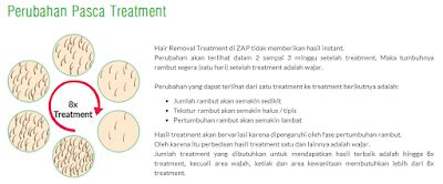 Catokan Di Bandung the lil engineer s zap underarm hair removal review