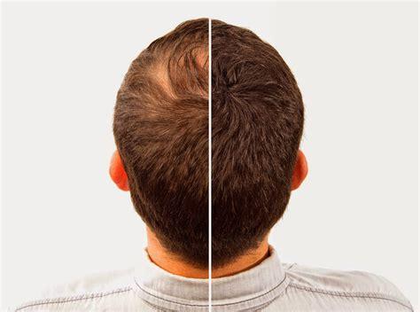 hair loss treatment comb the hair loss