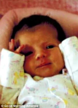 ashlyn blocker the girl who feels no pain nytimes ashlyn blocker defies odds to live with rare genetic