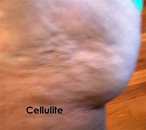 Cottage Cheese Cellulite by Orlando Cellulite Treatments