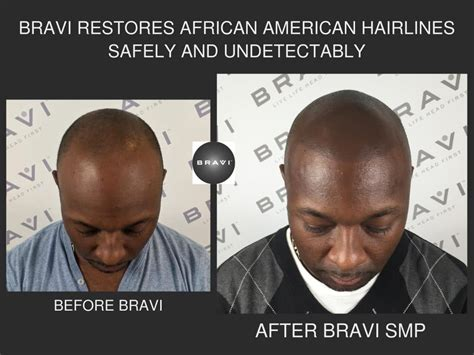 scalp micropigmentation for african american women in florida african amercian hairline restoration through scalp