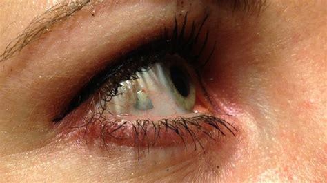 eyeball jewelry is the new piercing abc news
