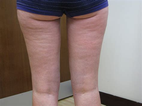 liposuction inner thighs selston cosmetic clinic vaser lipo inner thighs before