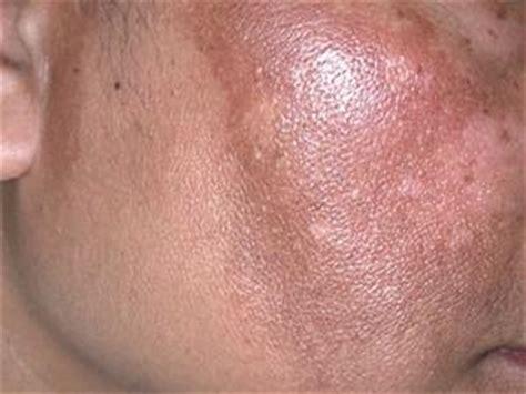 Oreilles Dã Collã Es Chirurgie Tratamiento Para El Melasma Con L 225 Ser Eximbanker