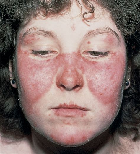 malar rash stepwards