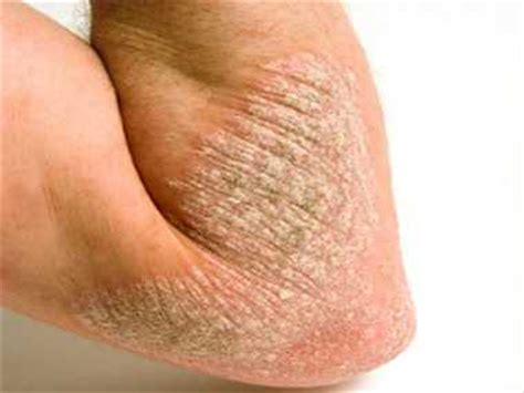 smagliature sedere cure for psoriasis disease