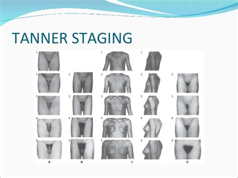 male stage tanner scale precocious puberty ppt