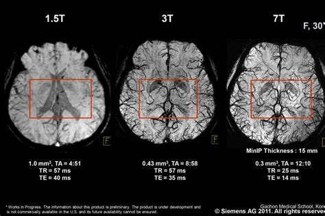 1 5 tesla mri brain scans showing the difference between a 1 5 tesla mri