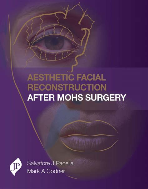 reconstruction after mohs surgery books jp publishers