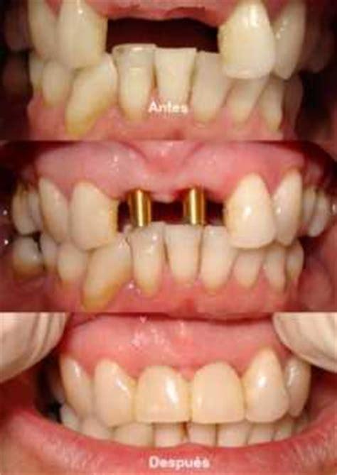 fundas zirconio problemas precios de implantes dentales inmedicina org consulta a
