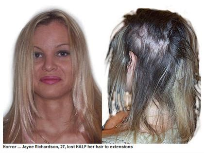 do glue in extensions damage your hair hl111 m bonded hair extension damage restored at